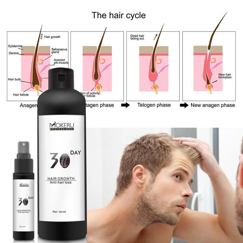 30 days efficient restore hair growth oil men loss treatment hair growth products for men and women and good for anti hair loss