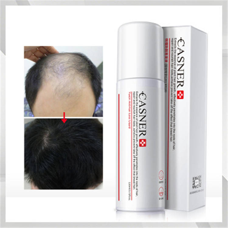 CASNER Hair balding Treatments Spray Alopecia Cure Help Healthy Hair Growth Serum For Family Men And Women Daily Use