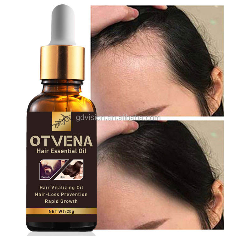 Best Hair Growth Treatment 4 Times Faster Hair Growth Oil Private Label