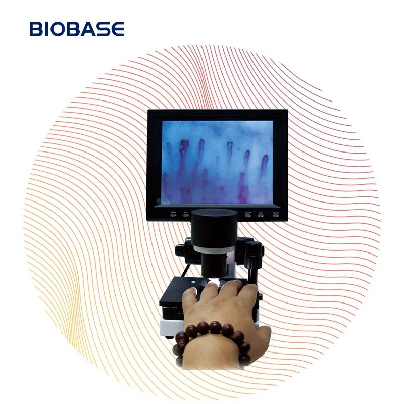 Biobase China Microcirculation Microscope Biological Digital Microscope For Theearly Diagnosis