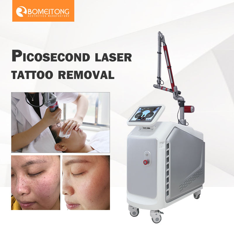 Bomeitong medical CE 532nm 1320nm picosecond yag laser laser tattoo removal machine