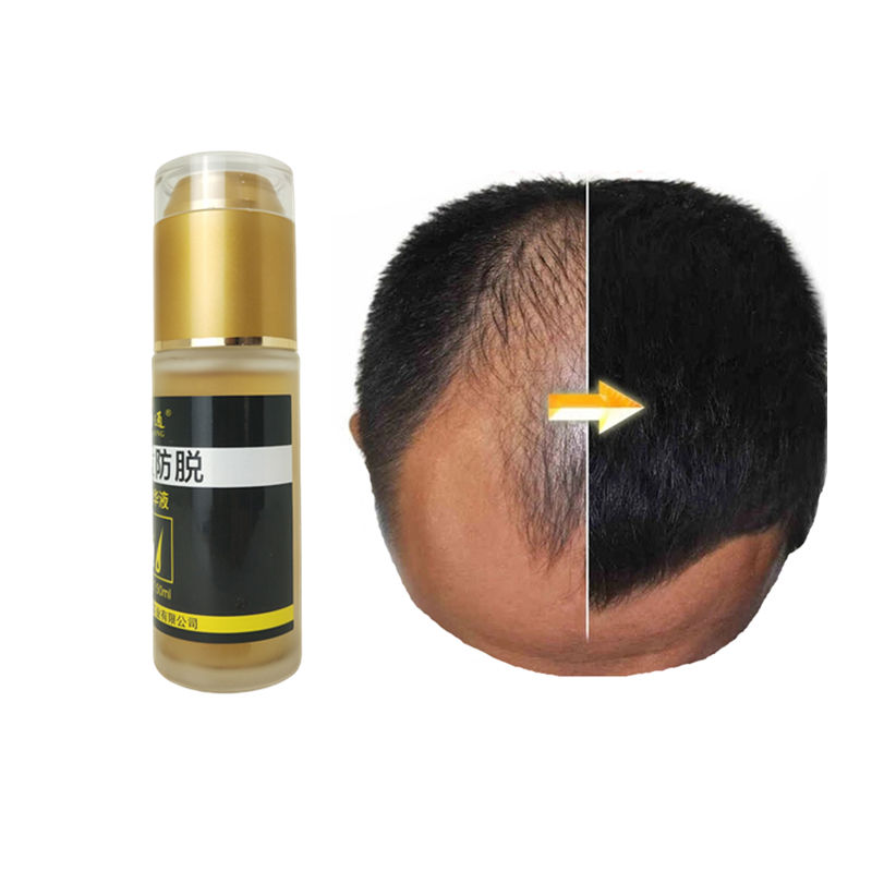 India Oil In For From Ayurvedic Herbs Natural Indianhair Ayurveda Fast Best hair growing oil Products Hair Growth