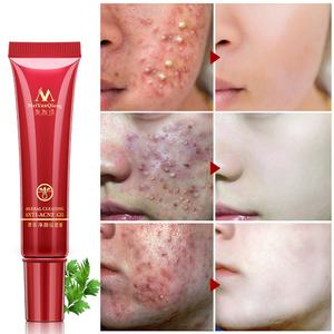 MEIYANQIONG Acne Scar Removal Cream Skin Repair Stretch Marks Whitening Cream