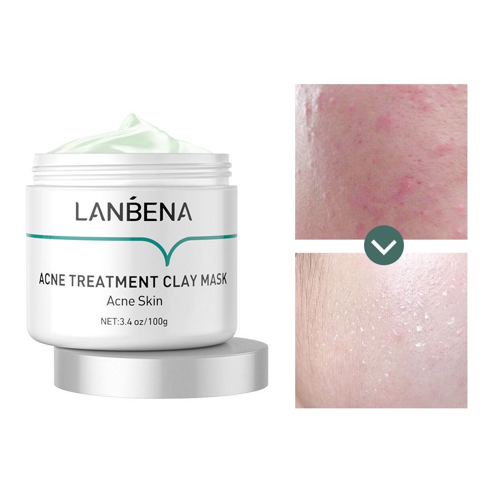 Lanbena oilgopeptideにきび治療クレイフェイスマスクホワイトニング