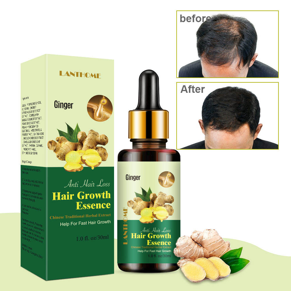 7 Days Regrow Ginger Hair Growth Serum Natural Ginseng Herbal Treatment Of Hair Loss King Ginger Anti Hair Loss Treatment