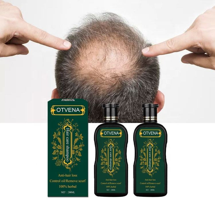 Men's hair care products anti hair loss herbal hair growth shampoo