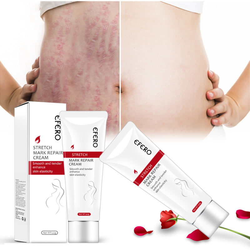 EFERO Postpartum Stretch Mark Cream Removal Scar and Stretch Mark Removal Cream Stretch Mark Cream