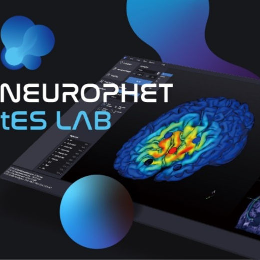 NEUROPHET tES LAB can makes fully automated brain segmentation