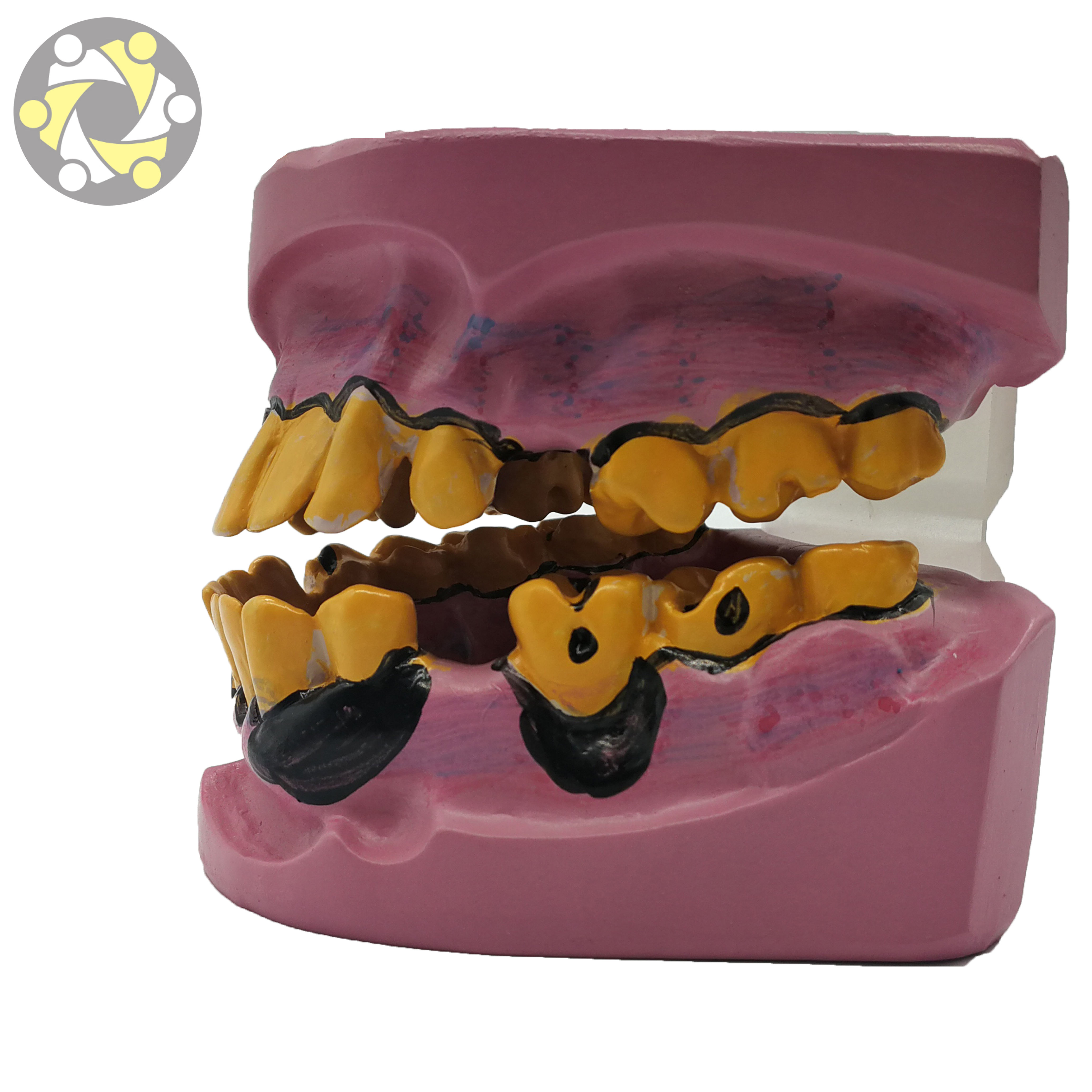 teeth dental practice model yellow malocclusion teeth jaw model of science medical