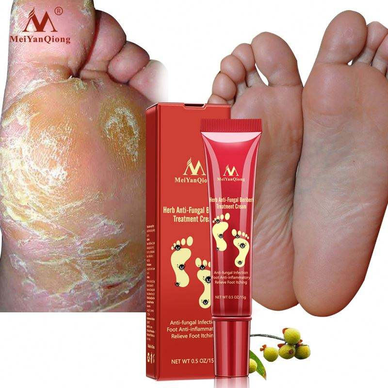 2018 New MeiYanQiong Brand Nail Foot Protector Skin Care Cream 15g Nail Fungus Treatment the Herb Nail Repair Cream