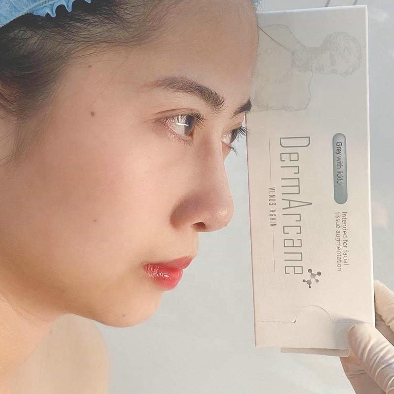 Anti-Wrinkles Dermal Filler 1ml Deep Ha Injection