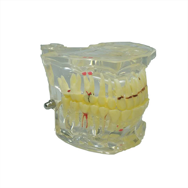 Transparent Adult Pathology Dental Model Tooth For Teaching
