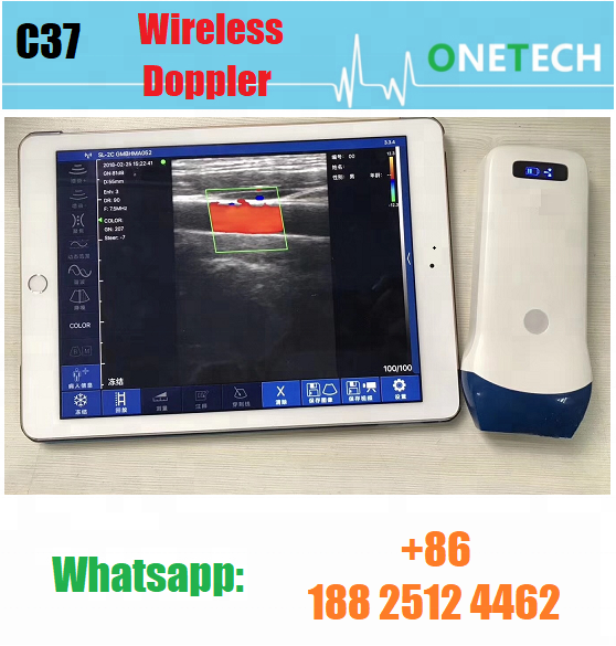 Portable mini wireless color doppler ultrasound probe 7.5/10Mhz for carotid, thyroid, vascular and MSK C37