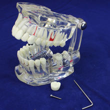 Factory Supply ! Dental Anatomical Teaching Teeth Model