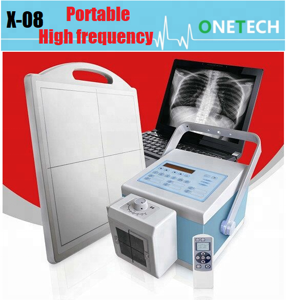 Intelligent portable digital X-ray machine with high frequency medical diagnostic equipment X-08