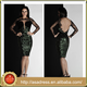 AKC01 Dark Green 2015 New Lace Long Sleeve Special Occasion Gowns Short Backless Sequins Sexy Bling Bling Cocktail Dress