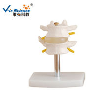 High quality 2 pcs Spinal Cord Model  With Stand