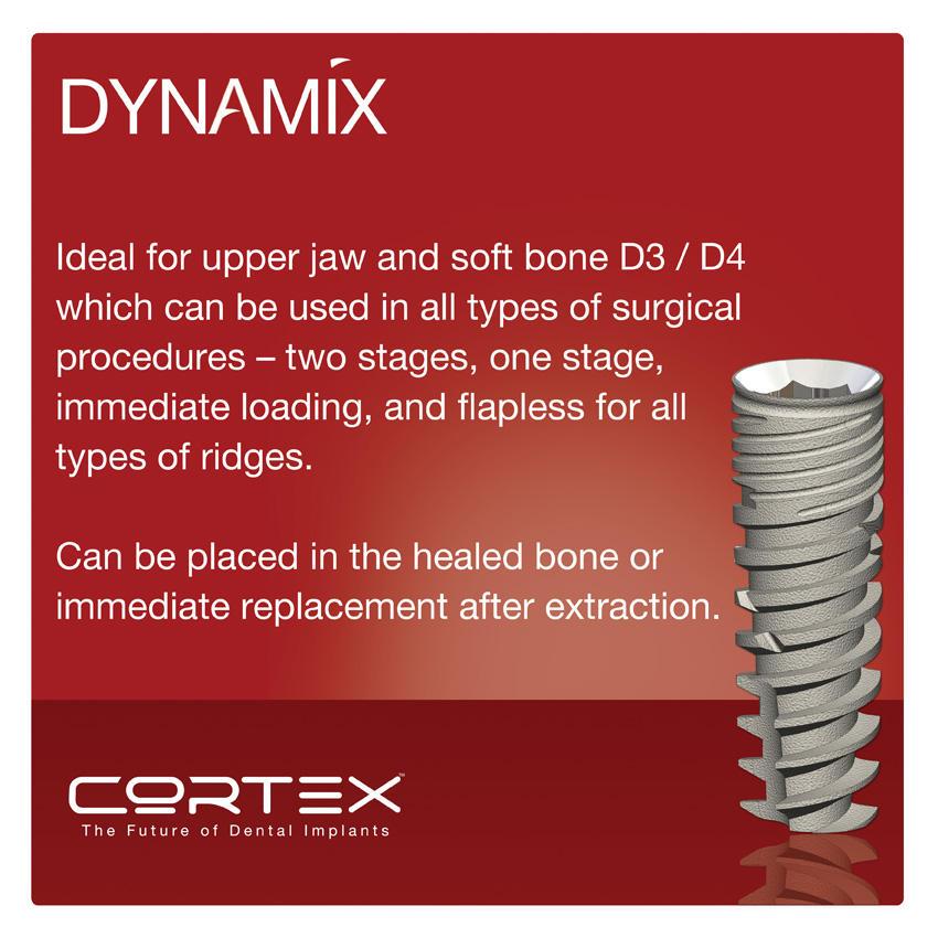 Dynamix Dental Implant