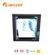 Operation room LED x ray film viewer with Cheapest rice