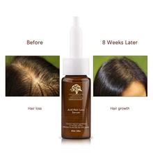 Natural Wholesale Private Label Hair Tonic Grow Anti Hair Loss Treatment for Men Oil Hair Growth Regrowth Ginger Serum