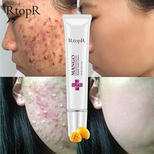 Acne Scar Stretch Marks Remover Cream Skin Repair Face Cream Acne Spots Acne Treatment Blackhead Whitening Cream