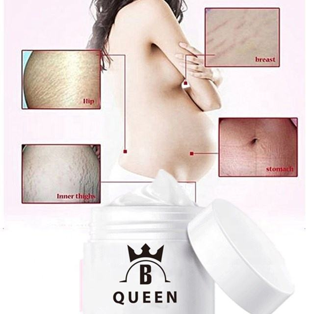 Skin Care After Pregnancy Repairing Stretch Marks Cream Acne Scar Removal Cream