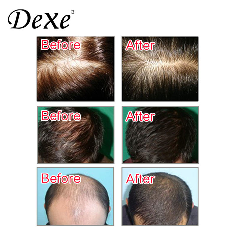 Hair Loss Shampoo DEXE Herbal Hair Care Natural Anti-hair Loss Shampoo 200ml/Private Label Welcomed