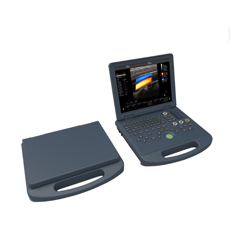 4D laptop portable ultrasound price