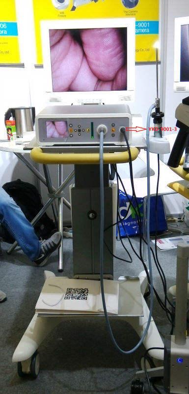 full hd medikal endoskopi histeroskopi ekipmanları