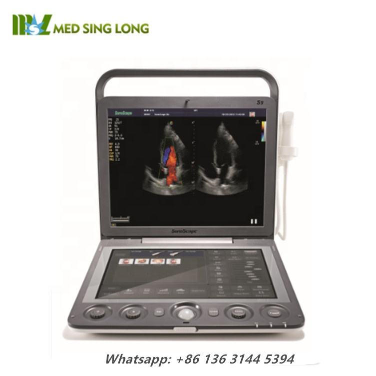 Portable ultrasound machines/ Sonoscape S9 doppler ultrasound scannser