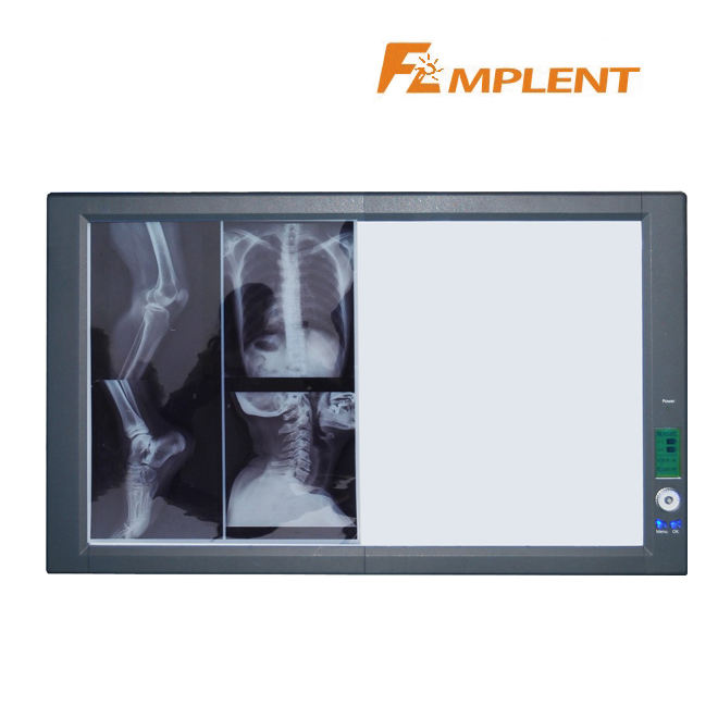 Ultra slim LED portable double x ray viewer led panel lamp LED X ray film viewer box at low price with three years warranty