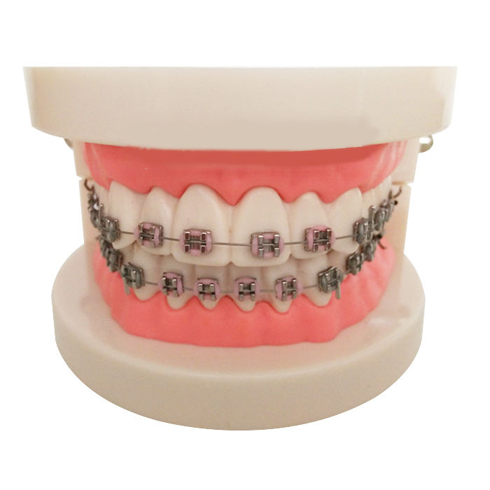 Dental Teach Study Erwachsenen Typodont Demonstration Zähne Modell mit Brackets