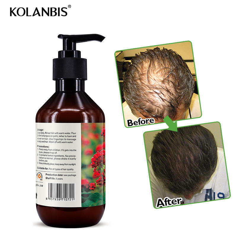 2019 New Hair Loss Shampoo For Baldness Treatment Help Fast Growth For Woman Man