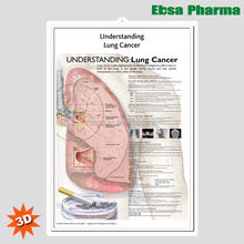 3D Medical Human Anatomy Wall Charts / Poster - Understanding Lung Cancer