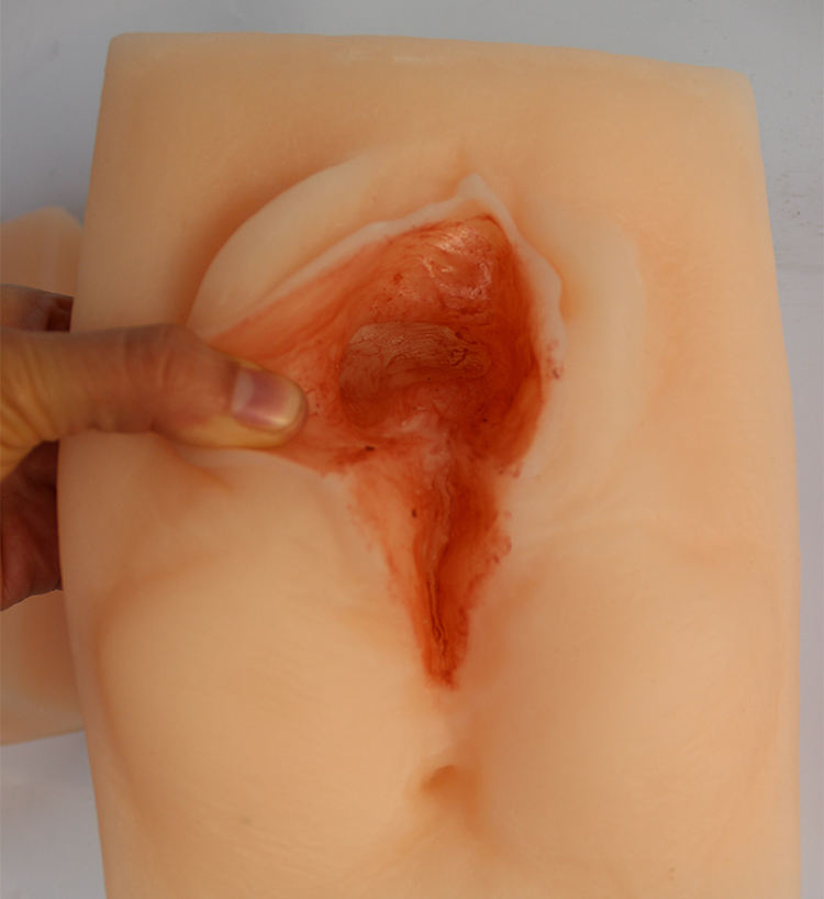 Reusable vulva suture training model
