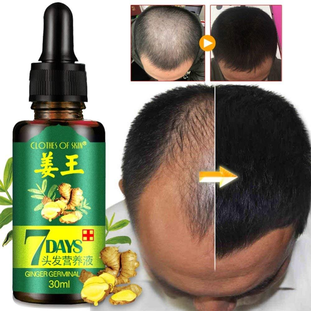 Ginger Germinal Hair regrowth Essential Oil Hair Loss Treatment For Men And Women Chinese herbal strengthen hair drop shipping