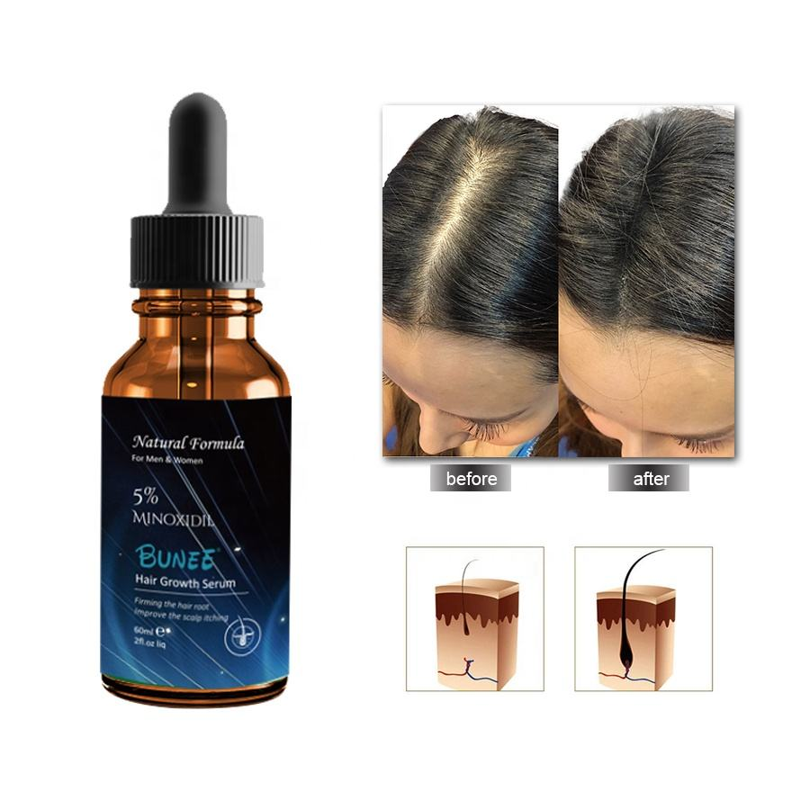 OEM pérdida de cabello cuidado Minoxidi <span class=keywords><strong>5</strong></span> biotina para el crecimiento del cabello tratamiento de suero