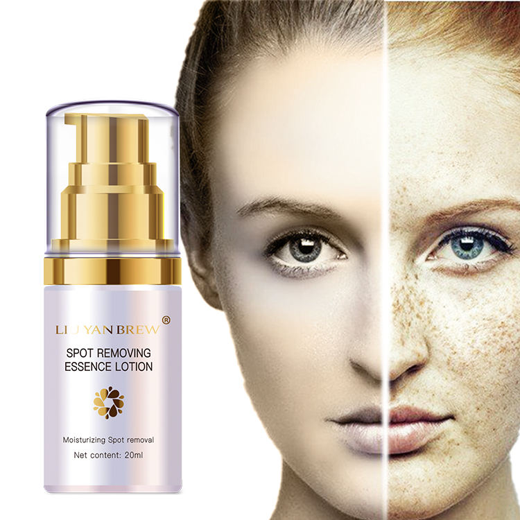Organic Natural Skin Whitening Anti Freckle Face Without Side Effects Creams