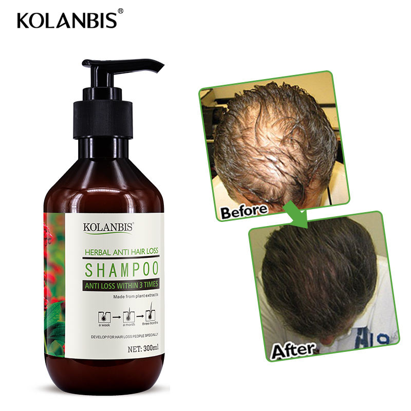 herbal shampoo control anti hair loss products treatment for hair growth