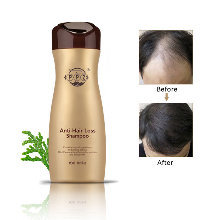 Ginger organic natural shampoo that can make your hair grow