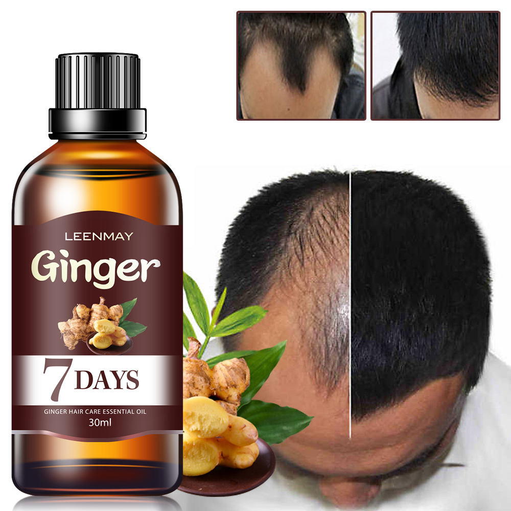 LEENMAY ginger king hair growth oil to increase dense hair organic hair growth products private brand