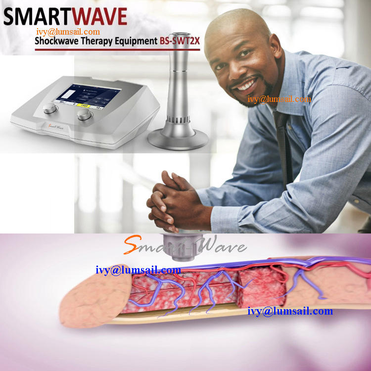 smartwave shock wave therapy clinical trial ED therapy diabetic foot ulcers