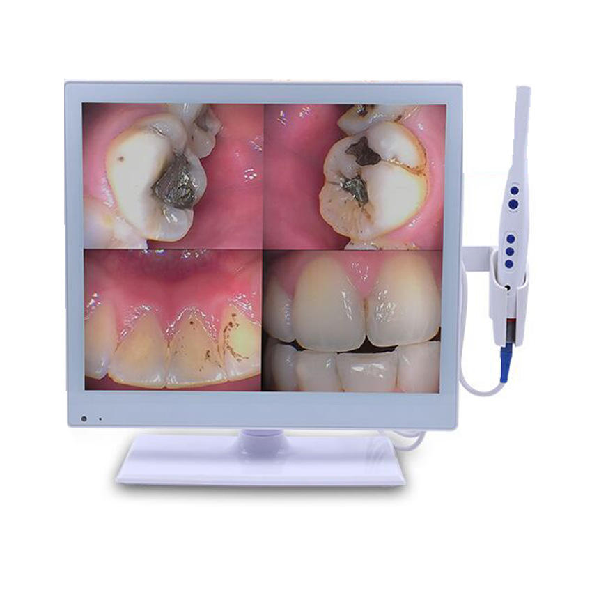MY-M067-1 intra oral camera medical dental equipment wifi wireless intraoral camera dental