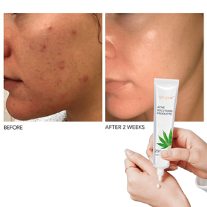 Acne Scar Treatment Cream Rapid Action Vanishing Acne Scar Blackhead Removal Shrink Pores Daily Clear Acne Treatment Cream