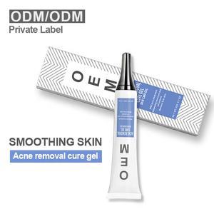 AUQUEST Hot Sale Acne Remvoal Skin Whitening Cream Anti Acne Cream Acne Treatment Moisturizing Essence Lotion