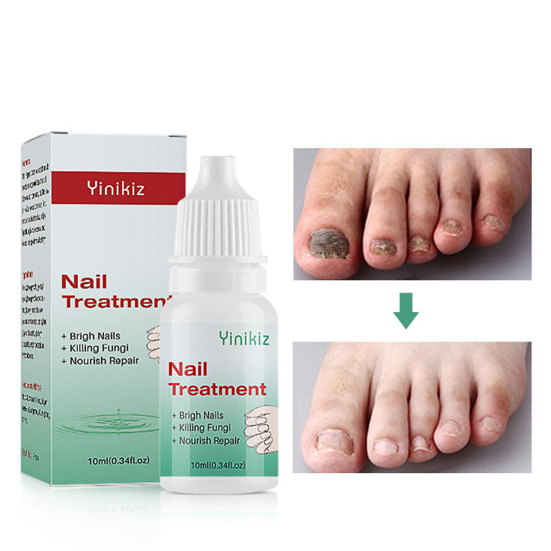 Herbs Essence Anti Infection Nail Treatment Toe Nail Fungus Removal Feet Care Nail Foot Whitening Bright Dropshipping