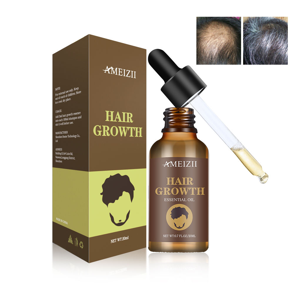 Private Label Hair Growth Serum Natural Ginger Aceites Esenciales Soin Cheveux Hair Regrowth Hair Loss Treatment Oil For Female
