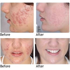 Acne Treatment Scar Cream Acne And Pimples Treatment Cream Best Private Label Skin Care Anti Acne Whitening Face Spot Treatment Products Pimple Acne Scar Treatment Removal Away Cream