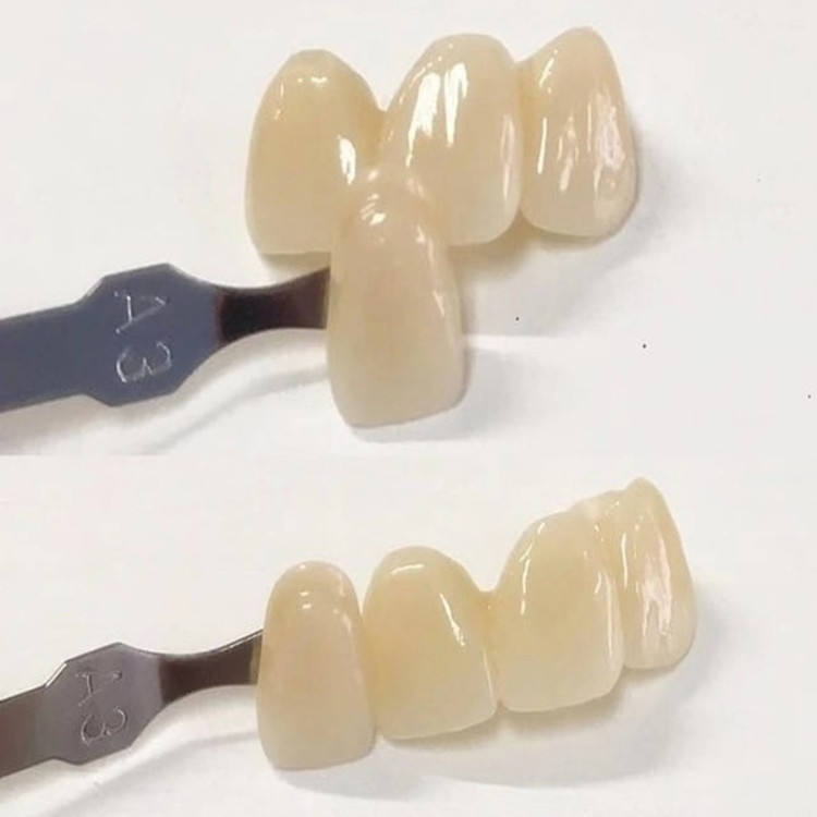 Dentiers en porcelaine, couronne/Bridge, bloc de zircone