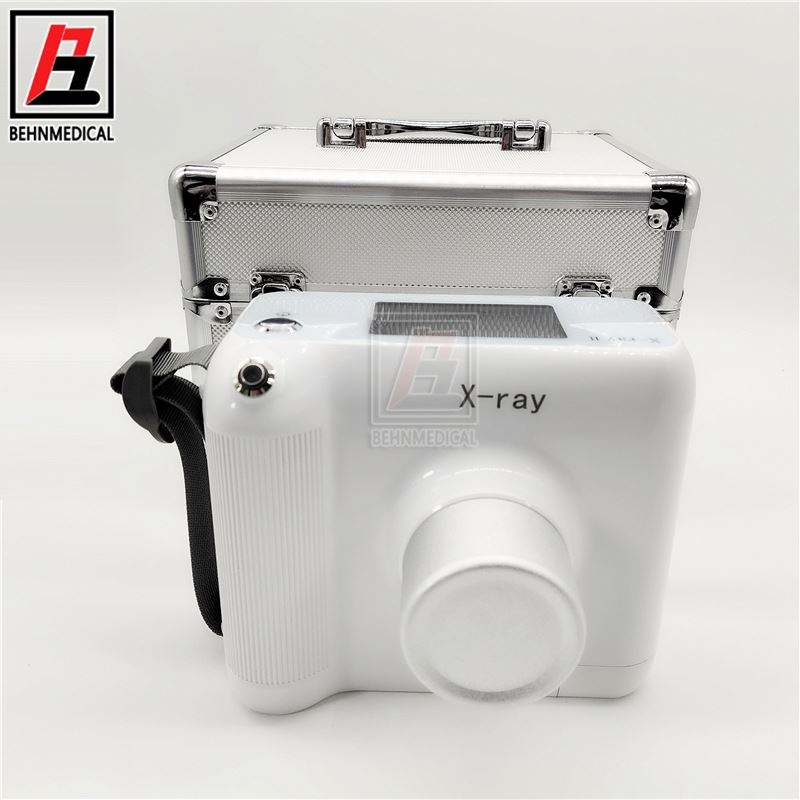 dental X-Ray machine portable wireless medical X-ray equipment digital oral inspection camera/High frequency x-ray radiography